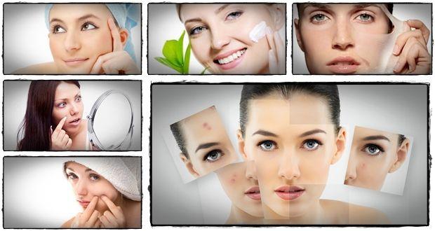 Curar el acné rápido