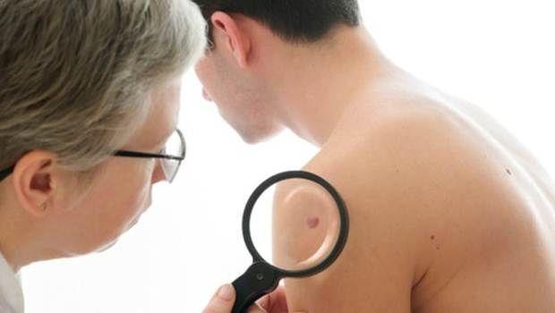 Iniciar los primeros signos de cáncer de piel que necesita saber - 8 signos