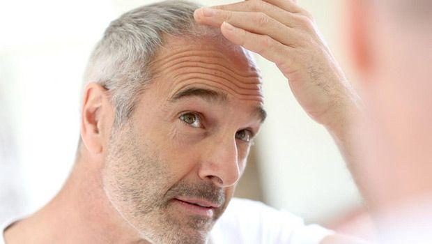 Cómo detener la caída del cabello en los hombres y mujeres de forma natural - 7 Consejos rápidos