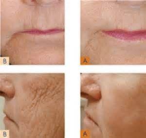 Consejos para estiramiento de la piel