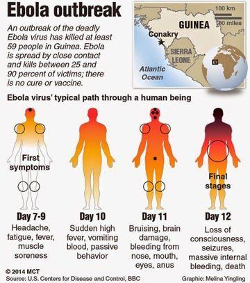Los signos y síntomas del Ébola