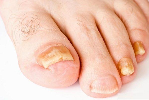 las uñas de color amarillo